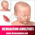 hemanjiom-ameliyatla-tedavi