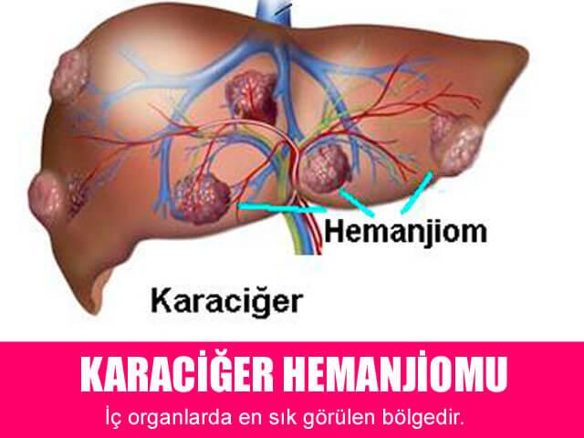 Karaciğer Hemanjiomu